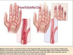 When exposed to cold, the blood vessels in the fingers, hands, toes, and feet constrict to prevent heat loss. The blood vessels quickly dilate once they are in Dercums Disease, Thyroid Disease, Autoimmune Disease, Cold Hands Causes, Cardiovascular Nursing, Raynaud's Phenomenon, Accupuncture, Spinal Stenosis, Massage