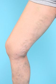 Easy and simple ways to cover Varicose Veins/Spider Veins