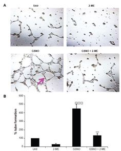 Figure 6 Effect of GSNO on formation of capillary-like proangiogenic structures on endothelial cells.