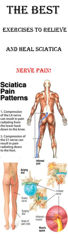 THE BEST EXERCISES TO RELIEVE AND HEAL SCIATICA NERVE PAIN!