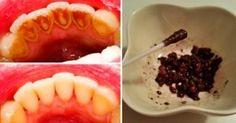 Wystarczy wymieszać te składniki i nanieść na zęby. To wybieli je w naturalny i naprawdę tani sposób