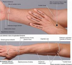 Surface anatomy of anterior forearm Physical Therapy School, Hand Therapy, Occupational Therapy, Massage Therapy, Physical Therapist, Forearm Anatomy, Wrist Anatomy, Medical Anatomy, Muscle Anatomy