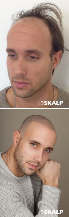 Wow! These results from before and after SMP treatment are Shocking!! Tony was featured on BESTFIT TV after having scalp micro pigmentation treatment with Skalp. Amazing Transformation!!