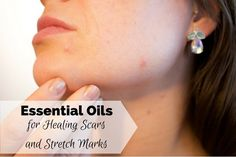 The best Essential Oils for Healing Scars and Stretch Marks, lavender, frankincense, geranium, Neroil, Carrot seed, and more, recipies, applications.