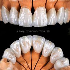 Dental - Zahnästhetik - Protesis dentales - #Dental #dentales #Protesis #Zahnästhetik Dental Design, Dental Art, Dental Teeth, Dental Hygienist, Dental Assistant, Dental Implants, Dental Aesthetics, Dental Photography, Dental Posters