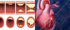 Žite ešte dlhšie! Tu je 15 najlepších potravín na prečistenie vašich tepien a prevenciu infarktu myokardu! - Báječné zdravie
