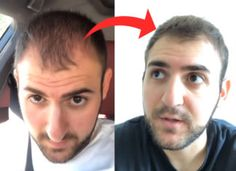How He Reversed Male Pattern Hair Loss (Step-by-Step) Thin Hair Haircuts, Layered Haircuts, Full Hair, Hair A, Volume Haircut, Hair Topic, Vitamins For Hair Loss, Long Thin Hair, Male Pattern Baldness