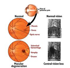Stem Cell Therapy for Macular Degeneration in India is becoming an alternative treatment option for eye treatment. Cost of Eye Macular Degeneration in India with is affordable at best stem cell therapy center in Mumbai. Lewy Body Dementia, Vascular Dementia, Macular Degeneration Prevention, Common Eye Diseases, Big Data Technologies, Eye Facts, The Retina, Stem Cell Therapy, Eyes Problems