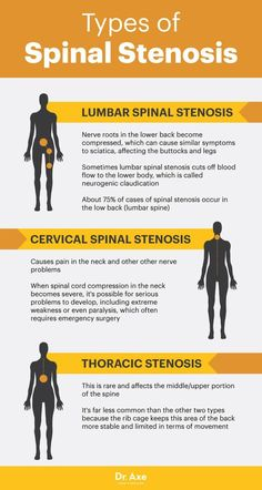 Stenosis: The Real Cause of Your Back Pain? Types of spinal stenosis - Dr. AxeTypes of spinal stenosis - Dr. Lumbar Spinal Stenosis, Spinal Stenosis Treatment, Cervical Spinal Stenosis Symptoms, Stenosis Of The Spine, Cervical Cancer Ribbon, Scoliosis Exercises, Lumbar Exercises, Degenerative Disc Disease, Spine Health