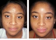 Quels sont les risques liés à lacné sur une peau foncée