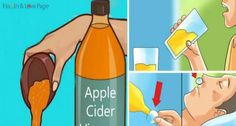 can assume that you have used apple cider vinegar in a number of recipes: from pickles, pie to salad dressings.We can assume that you have used apple cider vinegar in a number of recipes: from pickles, pie to salad dressings. Health And Beauty, Health And Wellness, Weight Loss Before, Apple Cider Vinegar, Alternative Medicine, Health Remedies, Healthy Tips, Natural Health, Natural Foods
