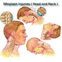 This study shows that people with chronic neck pain due to whiplash have fatty infiltration of the cervical muscles.  If you suffer from chronic neck pain give our office a call at 512 556-8223.  http://www.ncbi.nlm.nih.gov/pubmed/24270932
