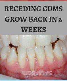 Receding gums situation happens when the tissues gum of the teeth corrodes and it looks your gums recede backwards. So the large surface of your teeth is exposed and more visible. When your gums go back, so the space between the gum line and the teeth rises. That is perfect place for bacteria growth. Receding gums […] Receeding Gums, Grow Back Receding Gums, Atkins Diet, Natural Home Remedies, Perfect Place, Keto Recipes, Teeth, Health Fitness, Lose Weight