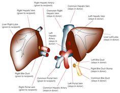 Liver Transplant Surgery India | Liver Transplant in India | Liver Transplant Hospital India | HealthandHolidays Blog