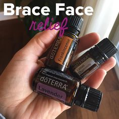 Peydon got braces yesterday and it is almost a given that there will be pain and tension of some kind. Thankfully it hasn't been too… Braces Food, Braces Tips, Dental Braces, Teeth Braces, Coconut Oil For Teeth, Coconut Oil Pulling, After Braces, Braces Pain, Essential Oils For Pain
