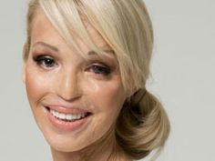 Katie Piper...Beautiful! An amazing person... wishing her the very best in life!!!