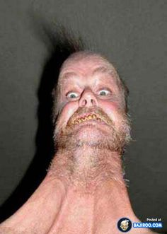 World's Most Strange and Weird pics from around the world Really Ugly People, Crazy People, Strange People, Ugly People Quotes, Ugly People Problems, Freaky Pictures, Ugly Men Pictures, Strange Pictures, Discussion