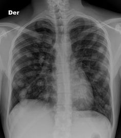 Pulmonary metastases are common and the result of metastatic spread to the lungs from a variety of tumours. Spread can occur via blood, or lymphatics. The remainder of this article concerns itself with haematogenous pulmonary metastases  Read more:  http://radiopaedia.org/articles/pulmonary-metastases