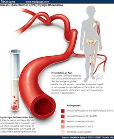 prednisone giant cell arteritis