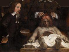 Anatomische les van dr. Jan Deijman by Rembrandt van Rijn