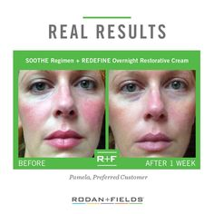 Get in touch with me to help you assess and address your skin care needs! KimberLeeJohnson.MyRandF.com