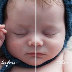 Newborn skin, removing the rashes without losing texture