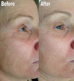 A picture speaks a thousand words this before and after shows you the power of Dermaviduals and Collagen Induction Therapy. Plastic Surgery Before After, Botox Before And After, Laser Rejuvenation, After Workout, Tattoo Removal, Weight Loss Before, Hair Transplant, Laser Hair Removal, Collagen