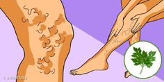 More than of adults have varicose veins. Varicose veins can be caused by hormonal imbalance, prolonged sta Herbal Remedies, Natural Remedies, Hormone Imbalance, Varicose Veins, Rodin, Herbalism, Aurora Sleeping Beauty, Aloe Vera, Daily Magazine
