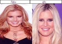 Best 5 Pictures of Jessica Simpson right after before surgical procedures in 12 months 2013 - Jessica Simpson has decided to have a plastic surgery nose job. We can see from the image that she has turned pointed nose from not-so-pointed nose image in the left. Jessica Simpson decided to switch image from sweet to very sexy actress matured by time and experience.We all adore her... #JessicaSimpsonAfterBeforeSurgery, #JessicaSimpsonAfterPlasticSurgery, #JessicaSimpsonBeforePlas