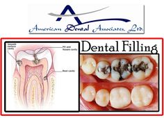 Dental Fillings are a common dental problem that used to extend the life of a tooth and protect it. Call on 773-284-1645 or 773-868-9200 and try our INTERACTIVE dental filling procedure today! See at more:- http://www.atooth.com/cicero-dentist