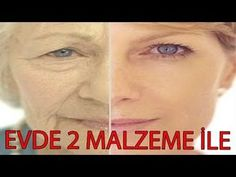 Yüz Geren Doğal Maske Ameliyatsız - Şaka Değil - Güzellik Bakım - YouTube Homemade Skin Care, Diy Mask, Beauty Secrets, Public, Make Up, Youtube, Life, Free Pattern, Knitting