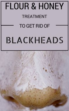 Flour And Honey Treatment To Get Rid Of Blackheads - Beauty Area
