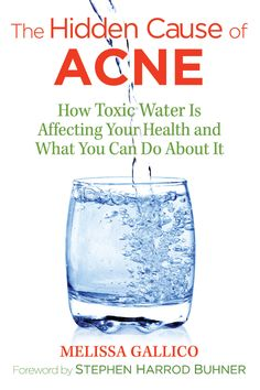 The Hidden Cause of Acne: How Toxic Water Is Affecting Your Health and What You Can Do about It: An investigation into the root cause of the modern acne epidemic--fluoride--and how to remove it from your diet and lifestyle for clear, healthy skin BRBR Home Remedies For Acne, Acne Remedies, Natural Remedies, Health Remedies, Teenage Acne, It Pdf, Acne Causes, What You Can Do, Health