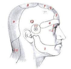 Ezt jelenti a krónikus fejfájás a fej bizonyos pontjain!