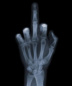 middle-finger-x-ray Nick Veasey Comme Des Freres, First Finger, Favorite Words, Skull And Bones, The Middle, Homestuck, Belle Photo, Objects, In This Moment