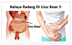 Pengobatan alternatif infeksi radang usus