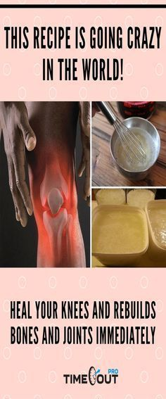 Over the years it is common for our body to wear out and show age-related ailments; the bone and joint pain is one of the main players symptoms over the years. Today we will teach you how to prepare a powerful remedy for knee bone and joint pain bef Arthritis Remedies, Arthritis Symptoms, Health Remedies, Home Remedies, Knee Arthritis, Holistic Remedies, Natural Headache Remedies, Natural Cures, Health And Wellness