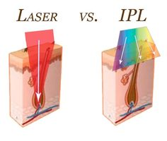 IPL Hair Removal: Elite Plastic and Cosmetic Surgery - Laser vs. IPL Hair Removal: Elite Plastic and Cosmetic Surgery You are in the right place about Skin - Best Hair Removal Products, Hair Removal Methods, Laser Hair Removal, Gel Frio, Color Del Pelo, Ipl Laser, Laser Laser, Botox Injections, Cosmetic Treatments