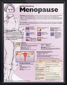 Understanding Menopause anatomy poster defines menopause and perimenopause, providing a brief description of changes that may be experienced. ObGyn chart for doctors and nurses.