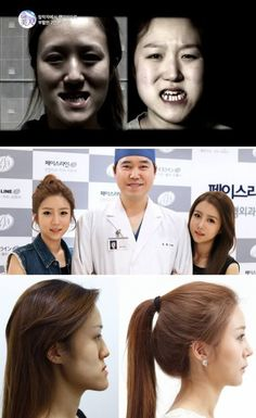 More of the Craziest Plastic Surgeries To Look Like Someone Else The South Korean twin sisters who got plastic surgery that turned them into totally different twin sistersLook To look is to use sight to perceive an object. Look or The Look may refer to: Japanese Plastic Surgery, Extreme Plastic Surgery, Blake Lively, Kim Kardashian, Korean Skincare Steps, Celebs Without Makeup, Combination Skin, Laser Hair Removal, Beauty Hacks