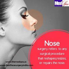 Best Face Surgery India: Nose surgery in Delhi - Important things you need ...  #nosesurgery #rhinoplastysurgeryindelhi #nosejobindelhi #Nosereshapingindelhi #openrhionplasty #closerhinoplastyindia