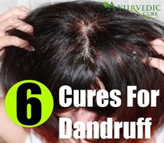 AyurvedicCure.com - http://www.ayurvediccure.com/how-to-get-rid-of-dandruff/