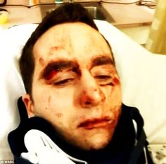 SEE IT! Knockout Game Victim Wakes Up In Ambulance With Shattered Jaw (VIDEO) 3/8/14  HEY PUNKS, THIS IS NOT A GAME!