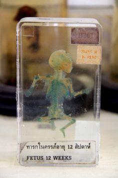 12 Week Old Fetus - Siriraj Medical Museumin Bangkok