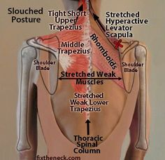 165 best upper back pain images  gym health fitness