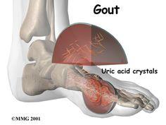 Gota – Enfermedad: Prevención, Síntomas y Tratamiento