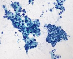 Good comparison of adenocarcinoma on the left and normal pancreatic cells on the right.