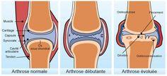 Solutions naturelles contre l'arthrose L'arthrose est un vieillissement, une usure des articulations, du cartilage, provoquant un inflammation, voire