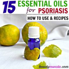 When you use essential oils to treat psoriasis, you have a great chance of curing yourself forever. Here's my list of 15 best essential oils to treat psoriasis and free recipes!