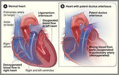 Persistent ductus arteriosus
